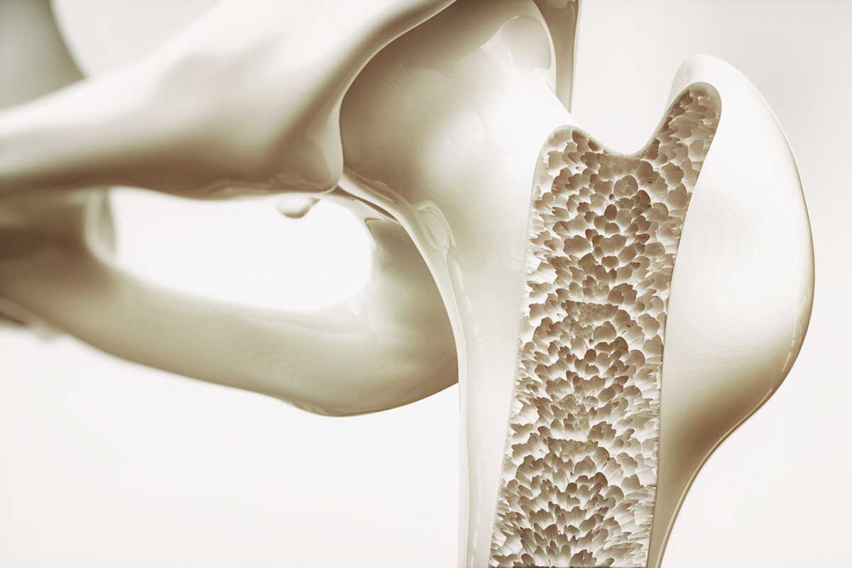 Foods that prevent osteoporosis article image