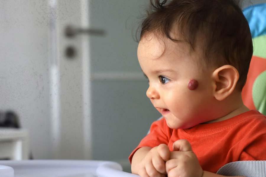 baby with tumor symptoms