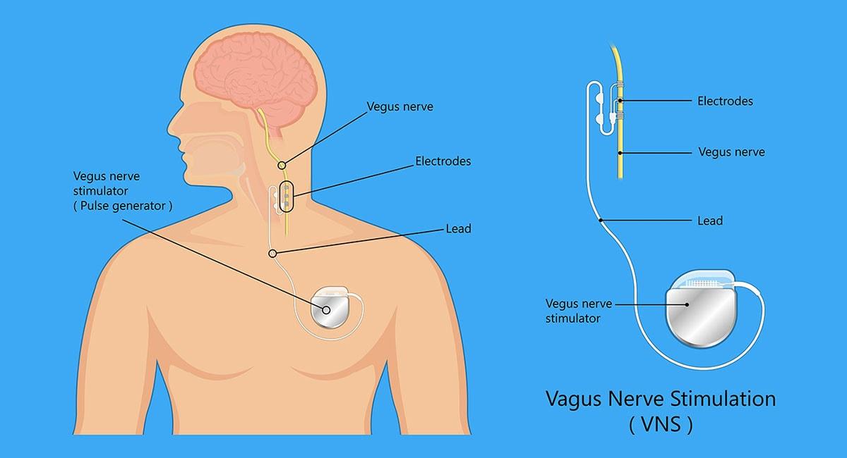 vagus nerve stimulation diagram